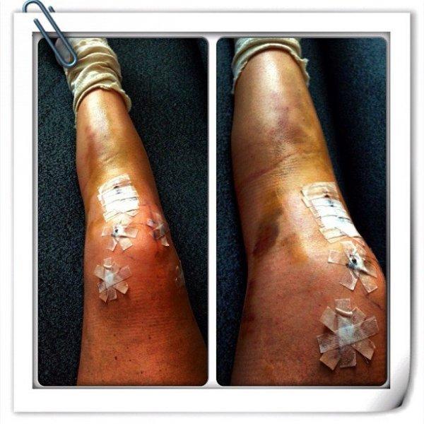 Связки колена: лечение без операции? - В блогах скиру - Форум SKI.RU