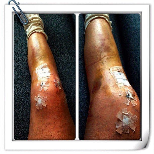 Лечение травм коленного сустава без операции 120