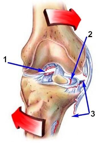 припухлость, нарушение походки и другие симптомы повреждения мениска