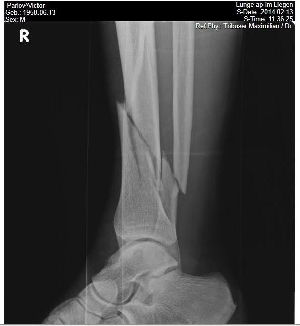 удаление металлоконструкций после перелома лодыжки