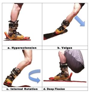 Болит колено после падения на лыжах пищевая сода при лечении суставов